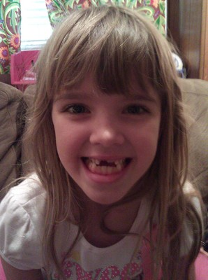 Amara had another tooth come out while she was eating
