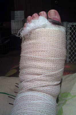 Jenna's foot in a huge bandage